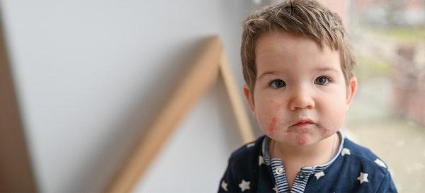 5 Eksim Pada Anak yang Sering Dialami dan Tips Mengatasinya