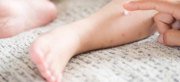 5 Penyebab Kulit Kering pada Bayi dan Cara Mengatasinya