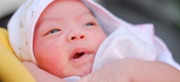 7 Cara Menyembuhkan Sariawan pada Bayi
