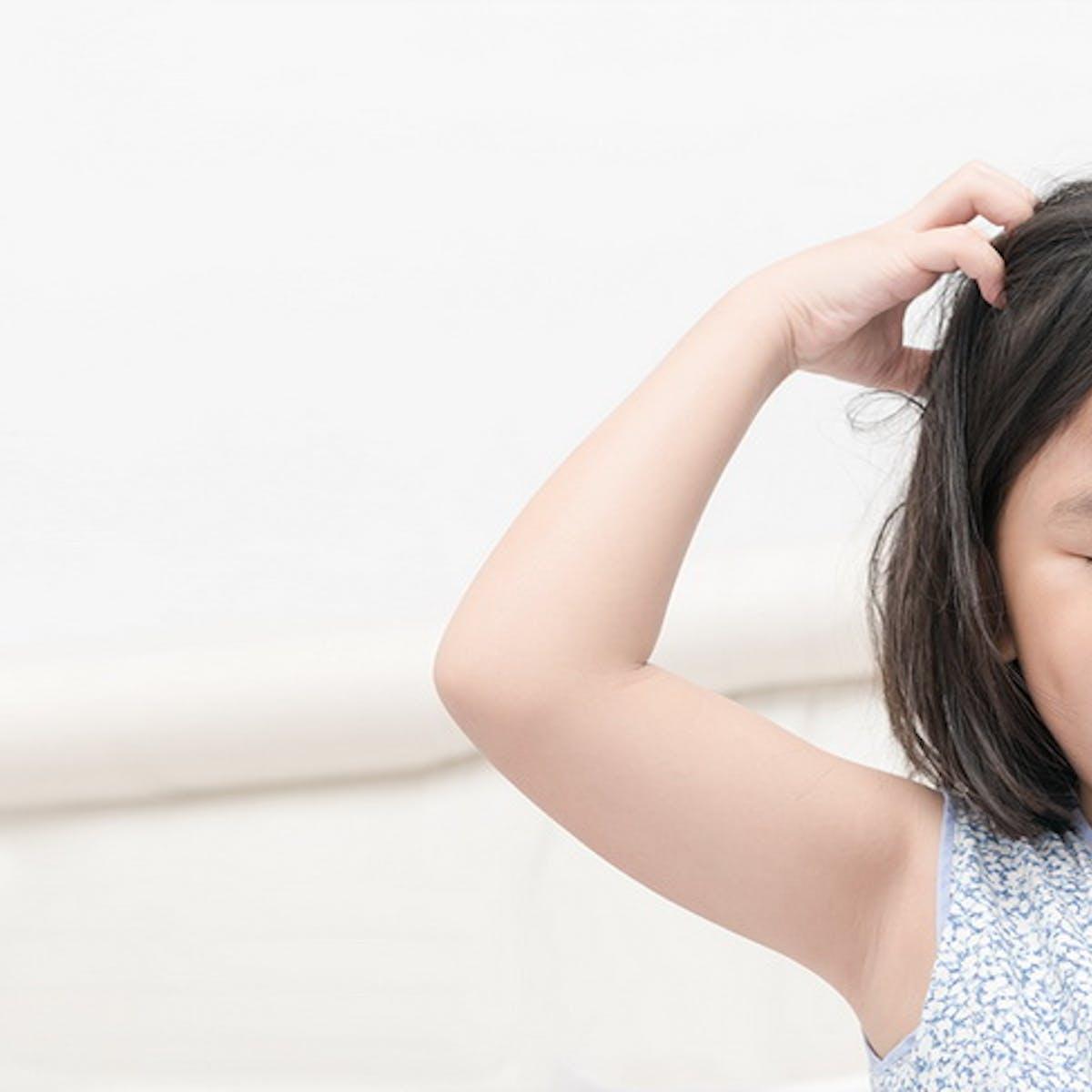 Penyebab Dan Cara Aman Menghilangkan Ketombe Pada Anak Ibupedia