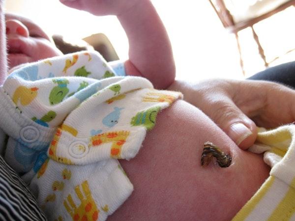Cara Merawat Tali Pusat Bayi