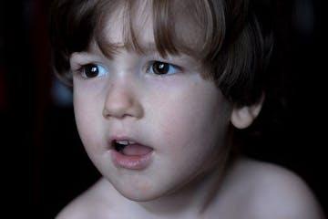 Penyebab dan Tanda Sinusitis Pada Anak Serta Pencegahannya