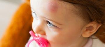 Perhatikan Memar Di Tubuh Anak, Normal Atau Tidak?